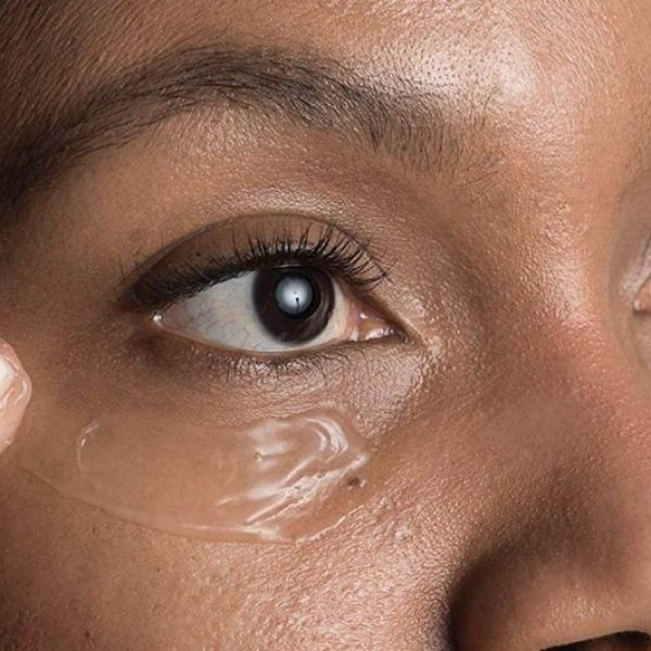 Home Remedies for Dark Circles, Puffiness or Wrinkles Around the Eyes