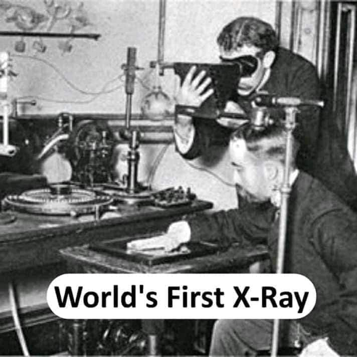 world's first X-ray