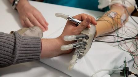 Lifehand 2 Develops Sensational Prosthetic